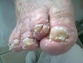 Profilaktyka stopy cukrzycowej Bielsko Biała Żywiec Oświęc