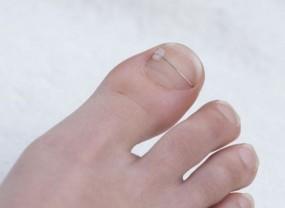 Wrastające paznokcie-korekcja