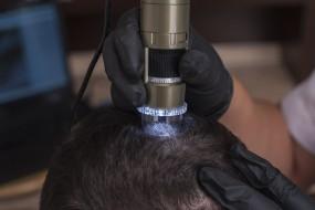 Diagnostyka skóry głowy dermotrychoskopem.