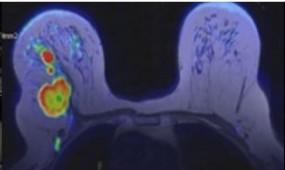 3T rezonans magnetyczny piersi